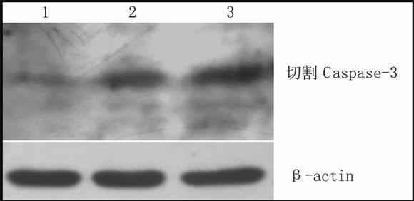 <a href=http://www.zanghonghua.cc>藏红花</a>素对HeLa细胞Caspase-3的激活作用